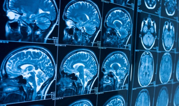 covid-19-sintomas-nature-perdida-de-memoria-cerebro-4995_620x368